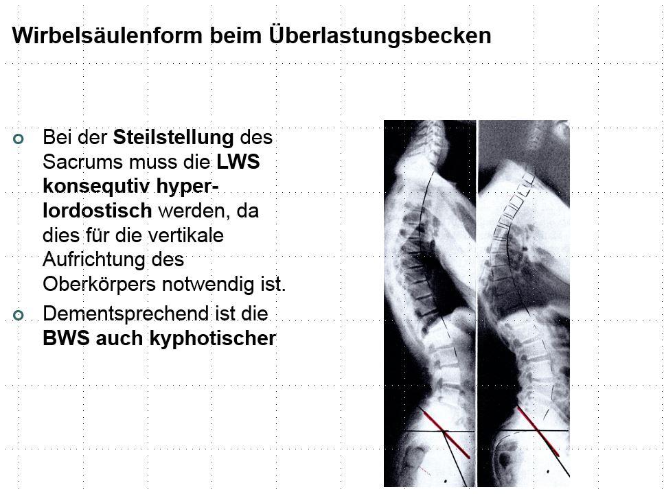 Ausgezeichnet Anatomie Der Lendenwirbelsäule Und Sacrum Bilder ...